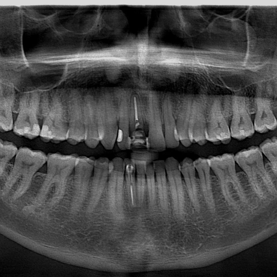 11 no kemik desteğini kaybetmiş sallanan ön diş