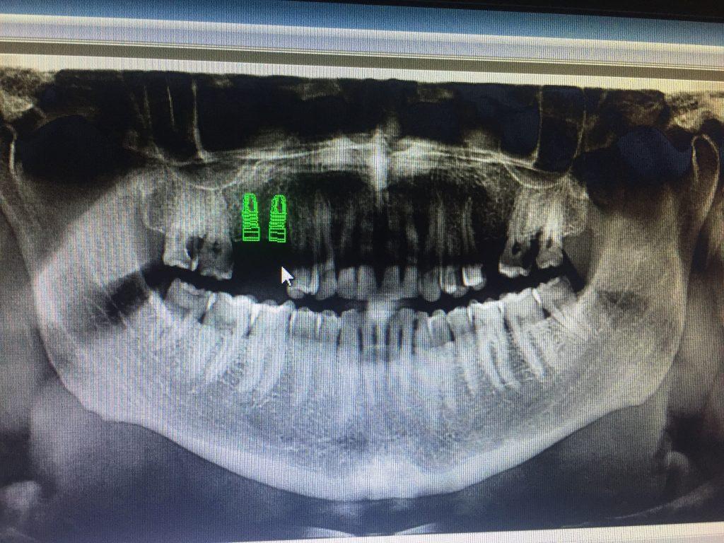 panoramik röntgen üzerinde implant ile ilgili hesaplamalar yapılır