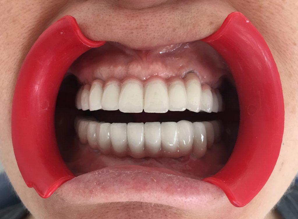 Dental implant Diş Hekimi Konyaaltı Antalya