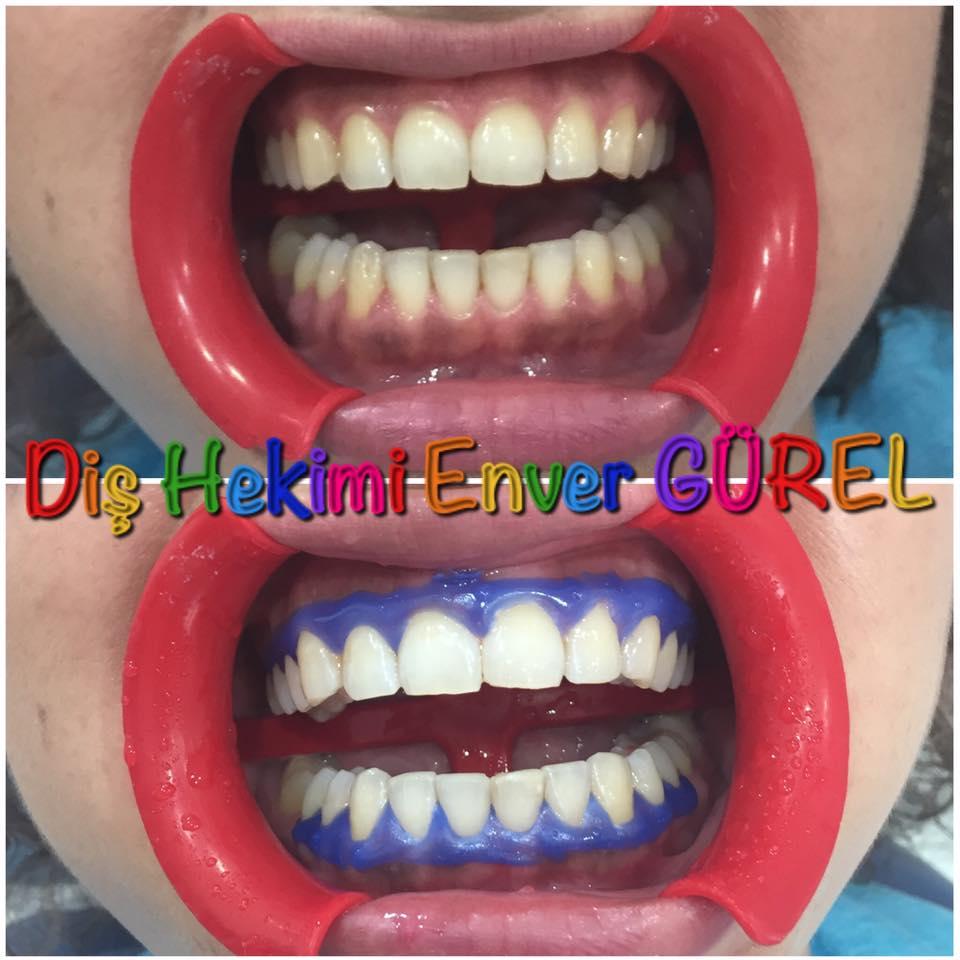 Estetik ve Kozmetik Diş Hekimliği