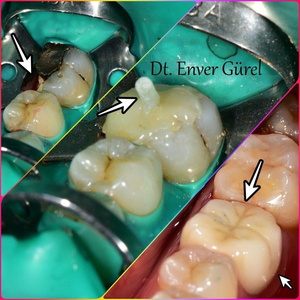 kırık diş fiber pos ve kompozit dolgu ile tedavisinden sonra porselen kaplama