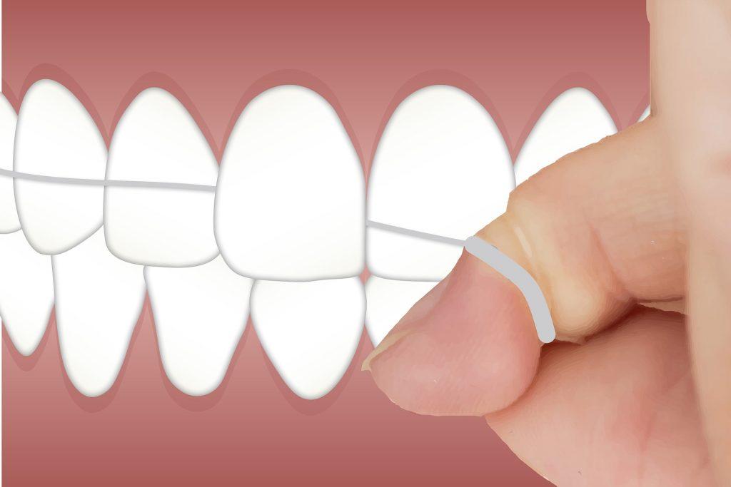 diş ipi uygulaması