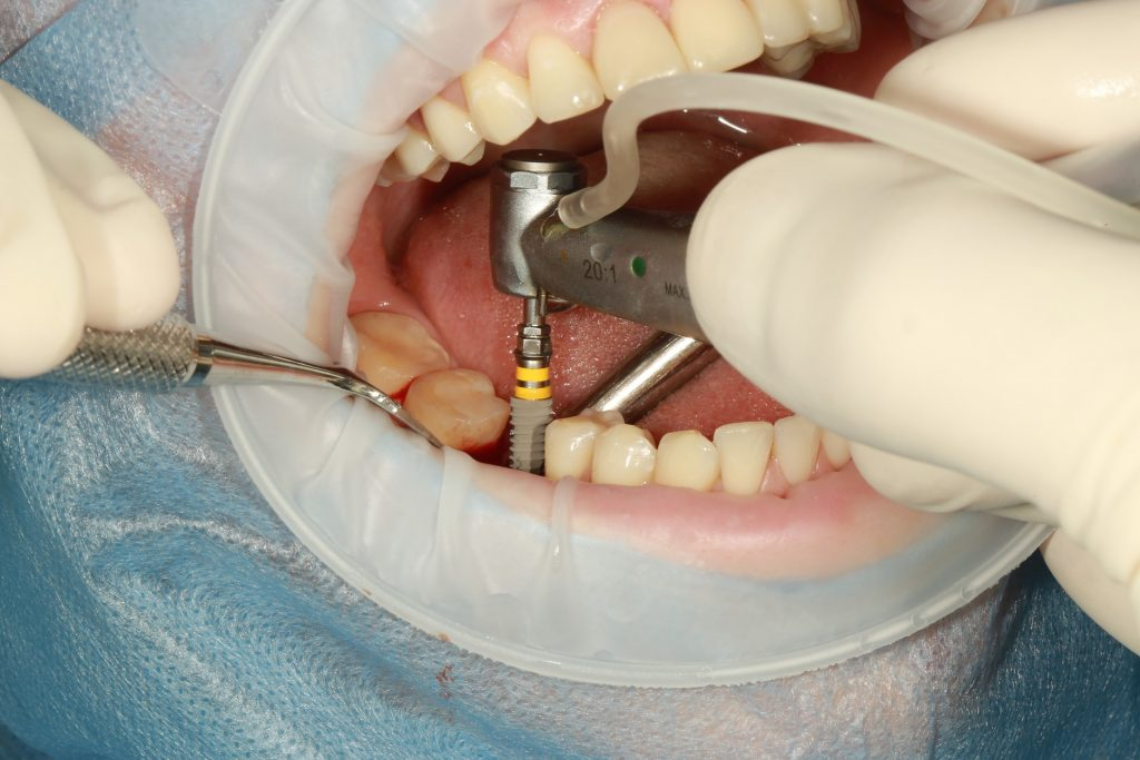 dental implant uygulaması ve ağız içi uygulaması