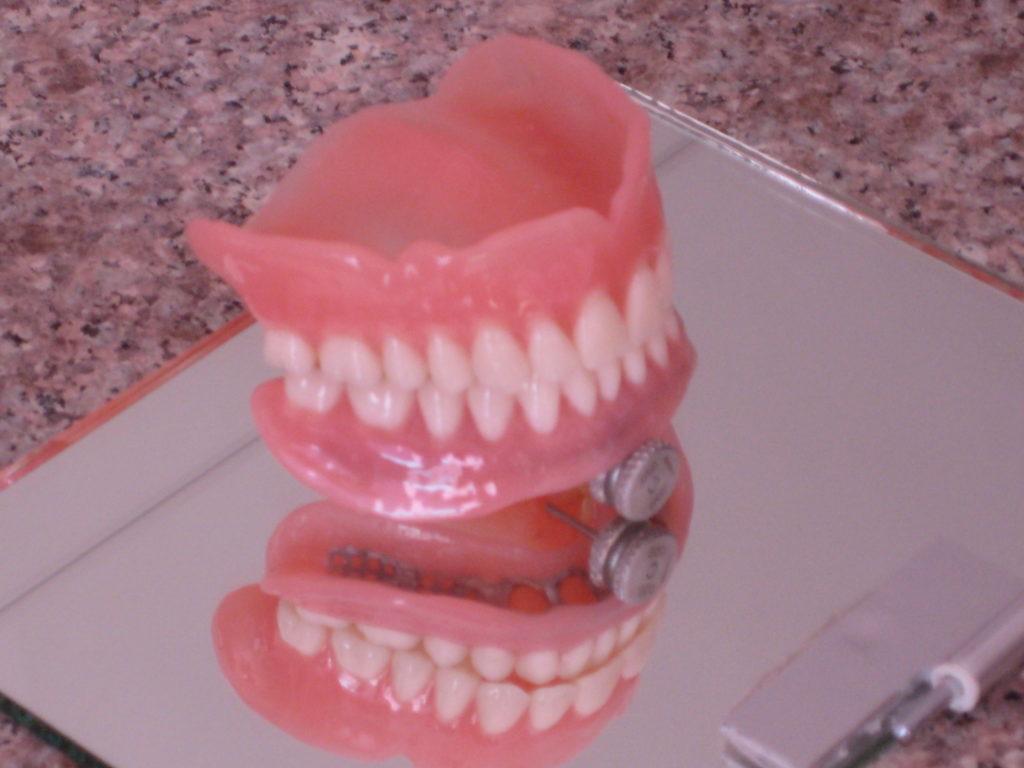 4 implant üzerine total protez