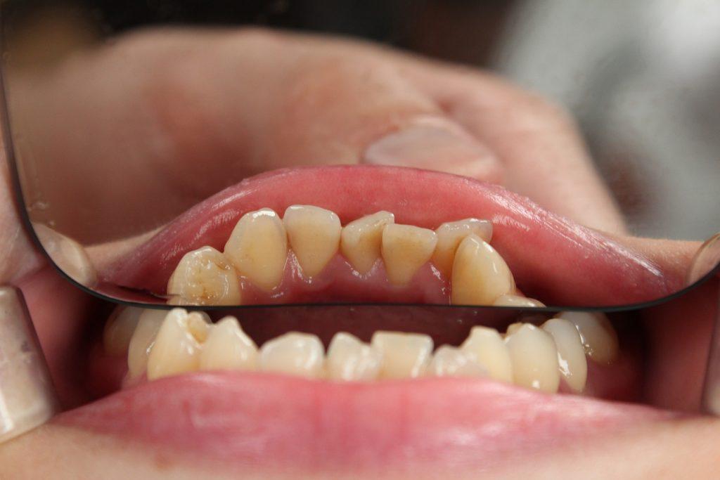 Diş Temizliği Nedir Nasıl Yapılır Acıtır mı