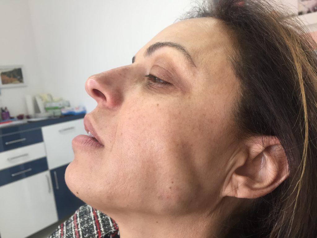 diş sıkma ve gıcırdatma durumlarında massater kas botoksu uygulanır