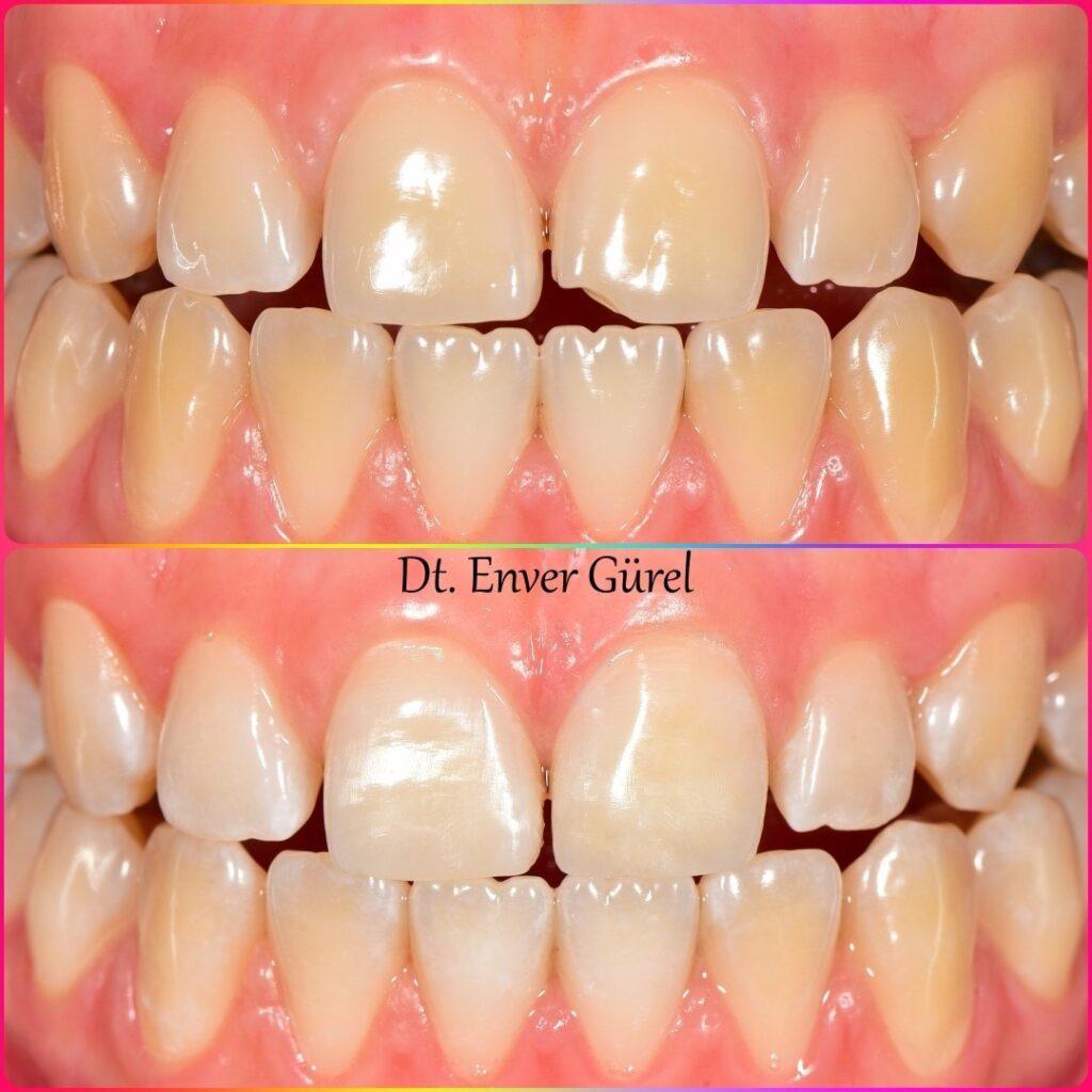 kırık diş ve estetik dolgu broken tooth