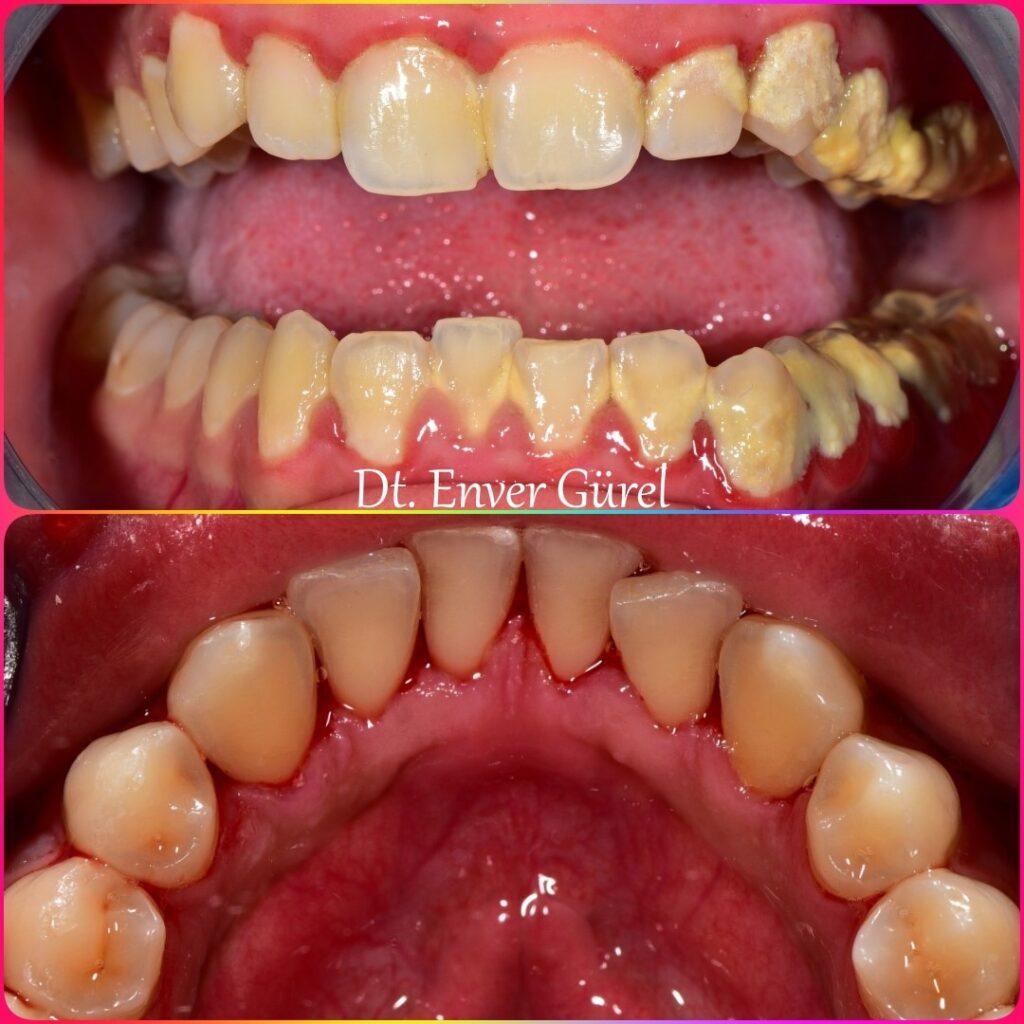 diş taşı tartar temizlik ve gingivitis periodontitis