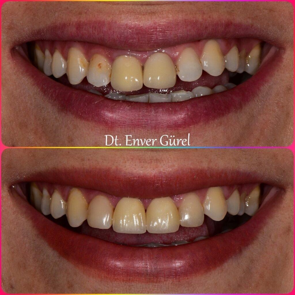 emax ve gingivektomi ile gülüş tasarımı