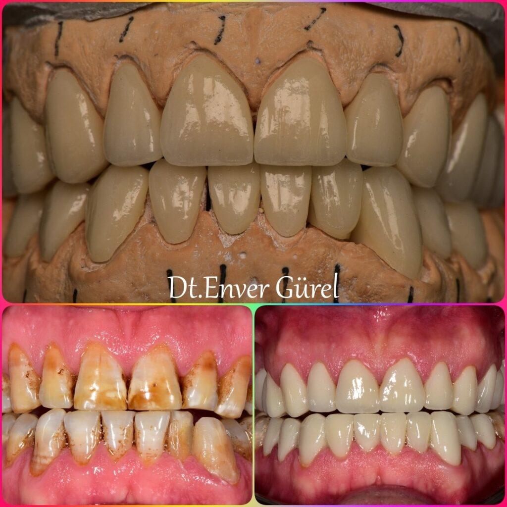 lamina diş ile gülüş tasarımı