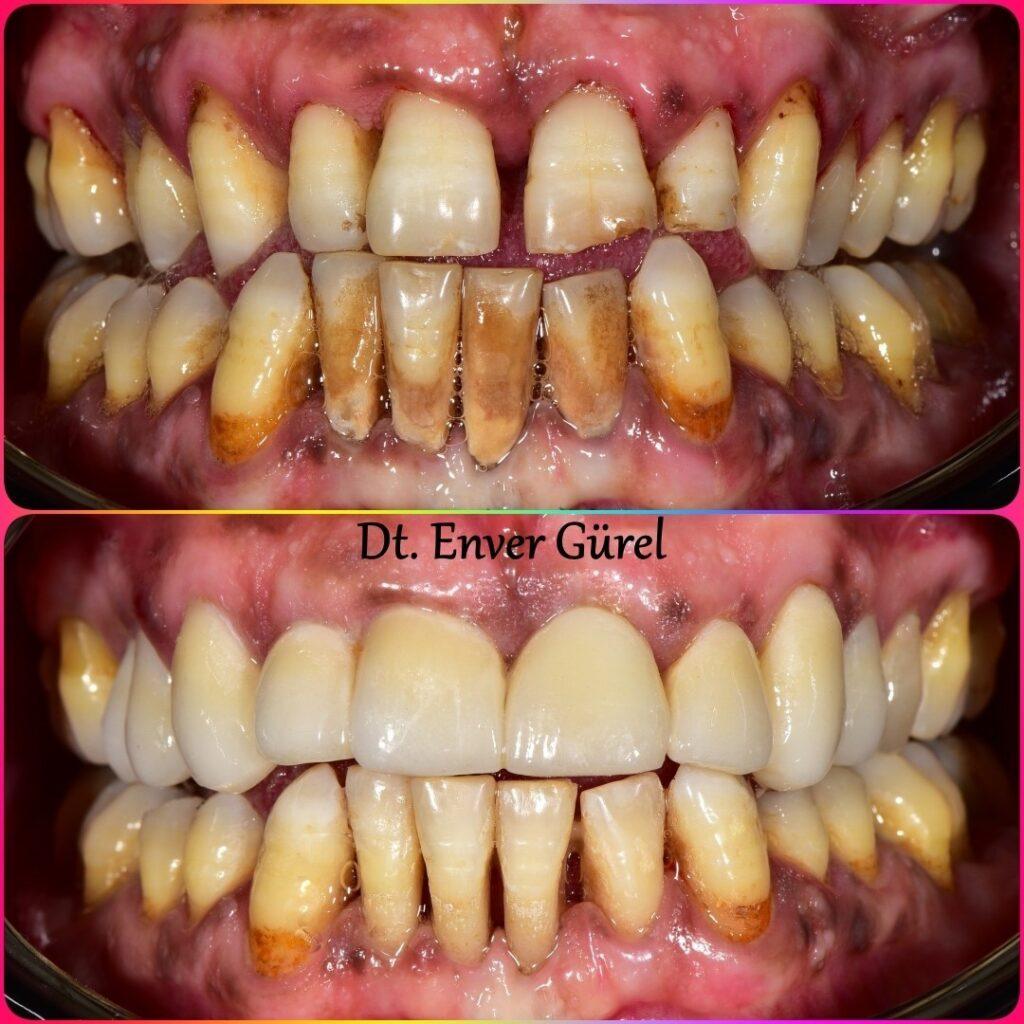 lamina diş ile gülüş tasarımı ve boşluk kapatma