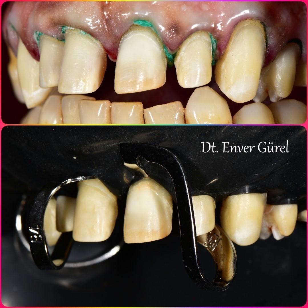 rubberdam ile lamine diş yapıştırma