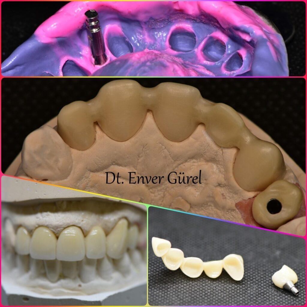 dental implant ile birlikte zirkonyum kaplamalar