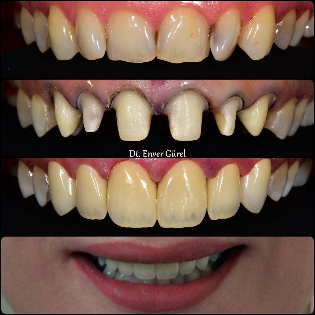 zircon zirkon emax gülüş tasarımı smile design