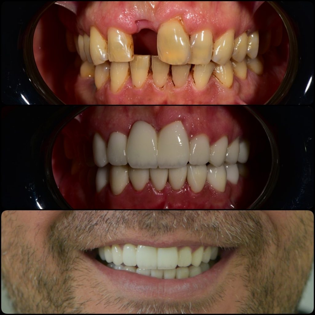 lamina emax gülüş tasarımı smile design