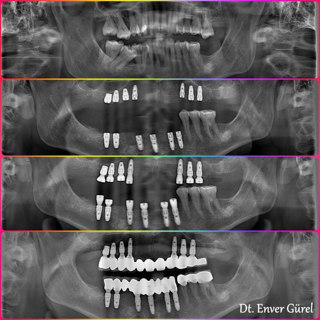 implant full