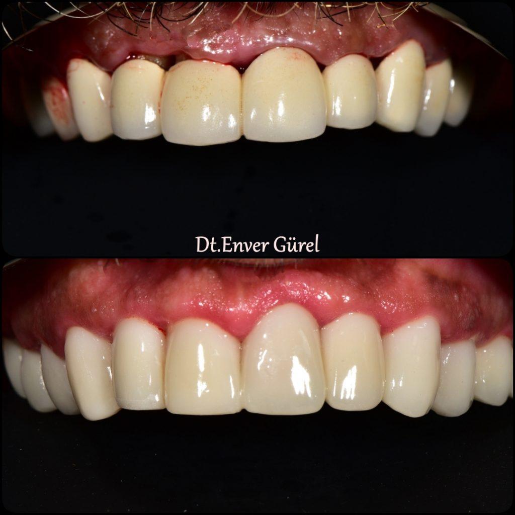 zircon zirkon emax gülüş tasarımı smile design gingivektomi dişeti laser